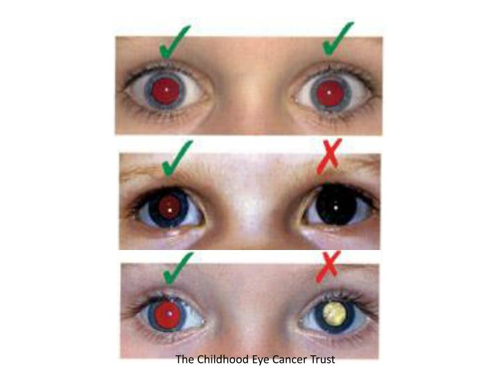 The Childhood Eye Cancer Trust