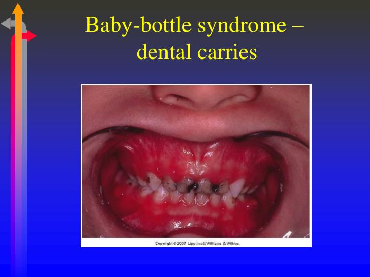 Baby-bottle syndrome –