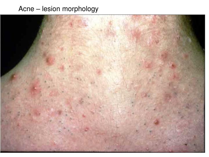 Acne – lesion morphology