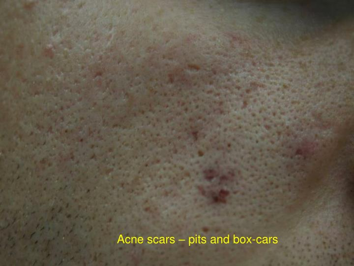 Acne scars – pits and box-cars