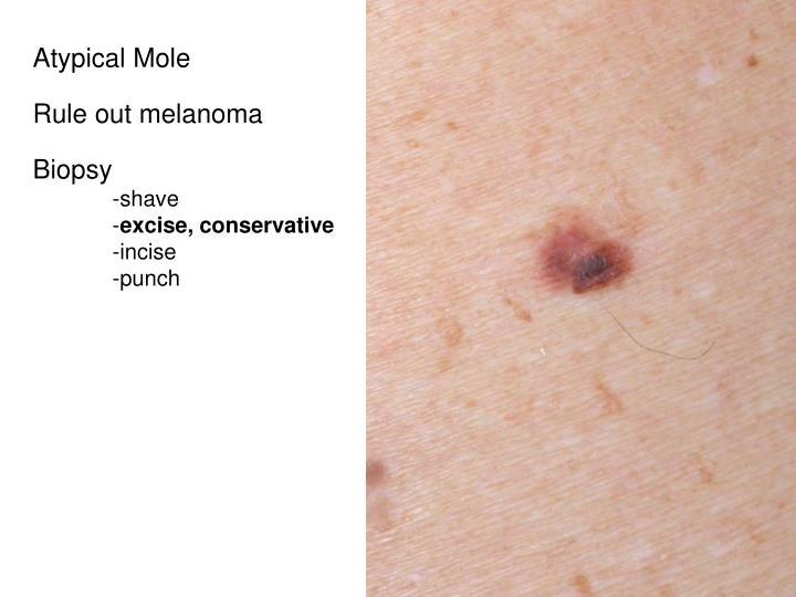 Atypical Mole