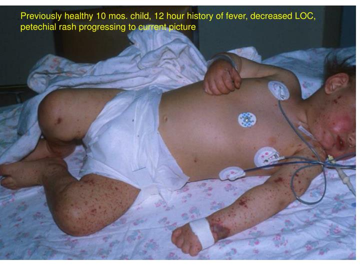 Previously healthy 10 mos. child, 12 hour history of fever, decreased LOC, petechial rash progressing to current picture