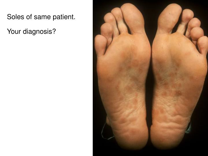 Soles of same patient.