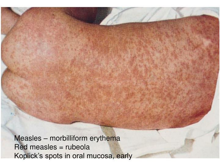 Measles – morbilliform erythema