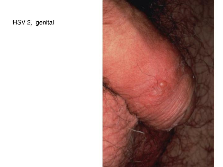 HSV 2,  genital
