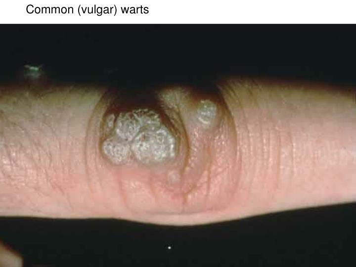 Common (vulgar) warts