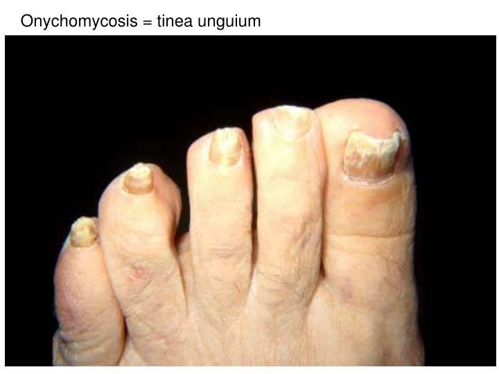 Onychomycosis = tinea unguium