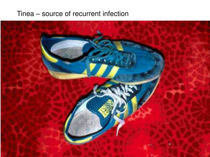 Tinea – source of recurrent infection