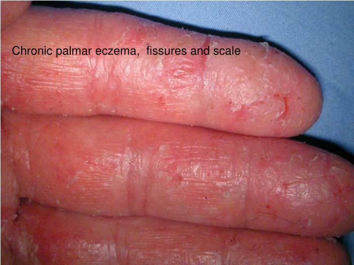 Chronic palmar eczema,  fissures and scale