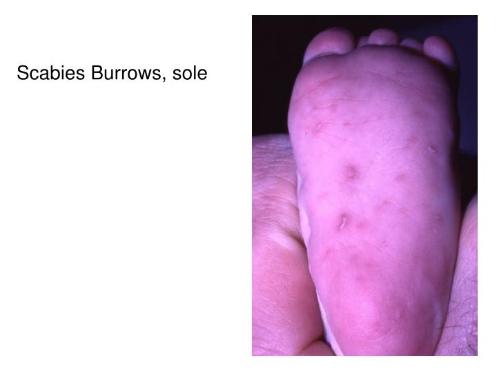 Scabies Burrows, sole