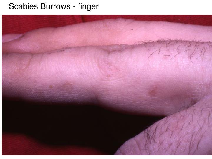 Scabies Burrows - finger