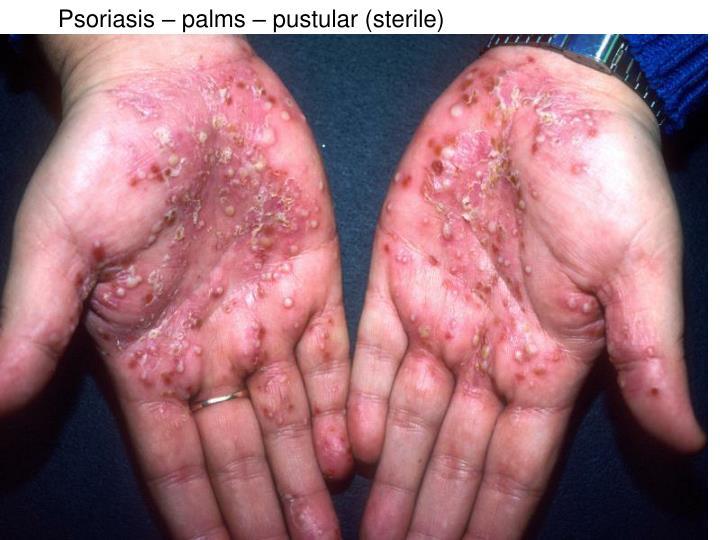 Psoriasis – palms – pustular (sterile)