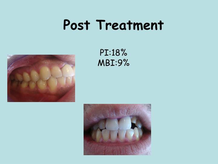 Post Treatment