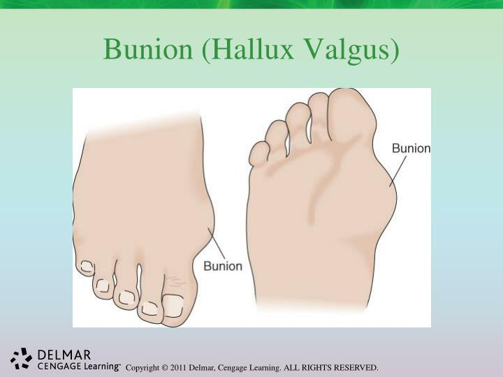 Bunion (Hallux Valgus)