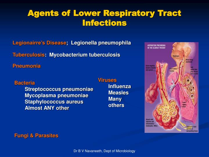 Agents of Lower Respiratory Tract Infections