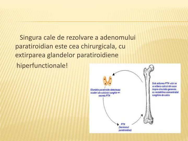 Singura cale de rezolvare a adenomului paratiroidian este cea chirurgicala, cu extirparea glandelor paratiroidiene