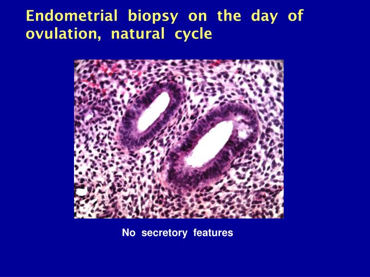 Endometrial  biopsy  on  the  day  of  ovulation,  natural  cycle