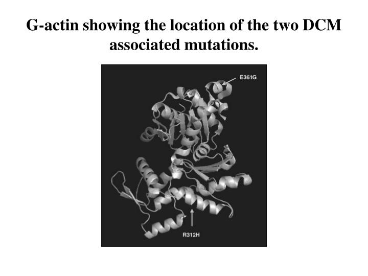 G-actin showing the location of the two DCM associated mutations.