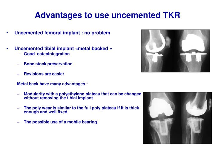 Advantages to use uncemented TKR