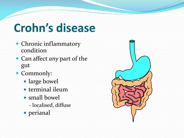 Crohn's disease