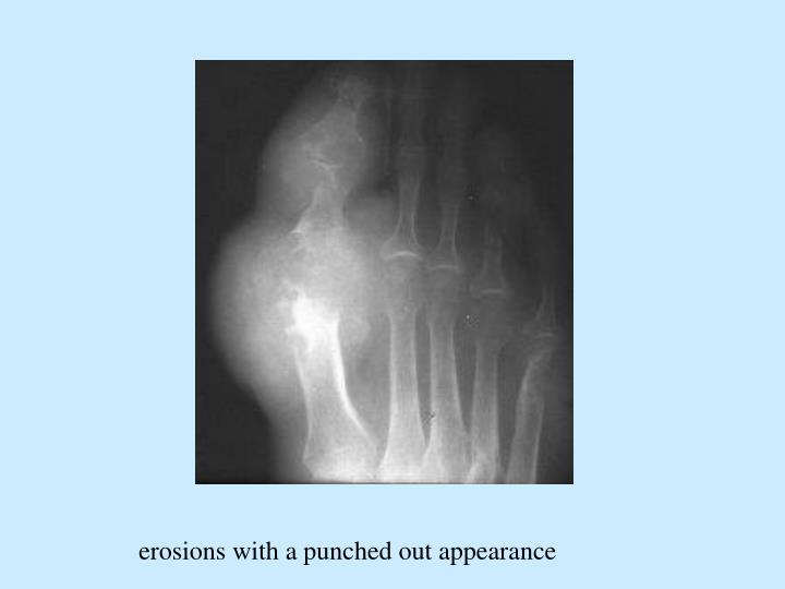 erosions with a punched out appearance