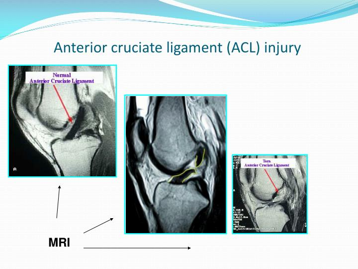 Anterior cruciate ligament (ACL) injury