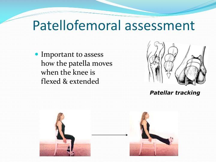 Patellofemoral assessment