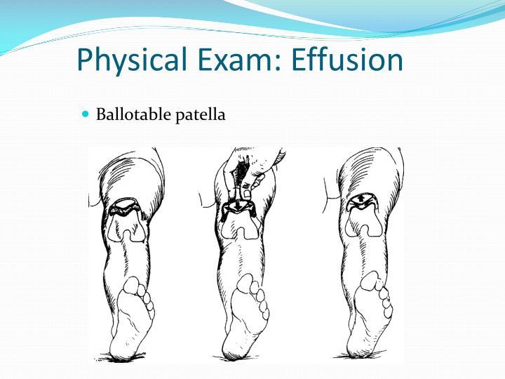 Physical Exam: Effusion