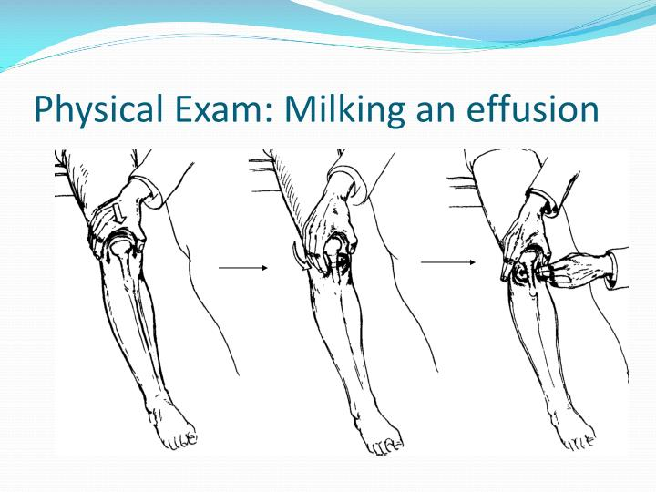 Physical Exam: Milking an effusion