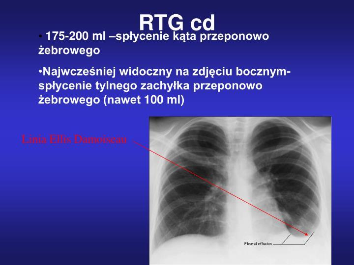 RTG cd
