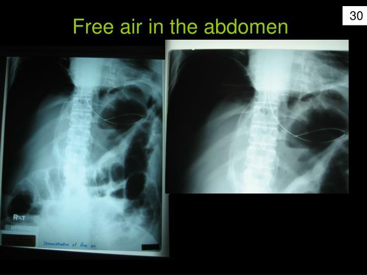 Free air in the abdomen
