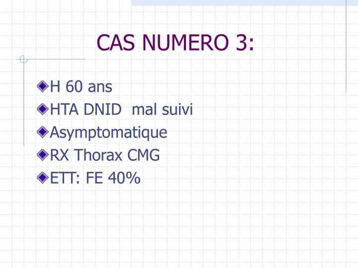 CAS NUMERO 3:
