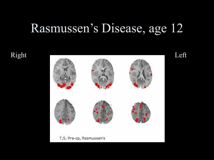 Rasmussen's Disease, age 12