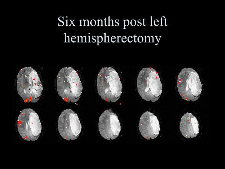 Six months post left hemispherectomy