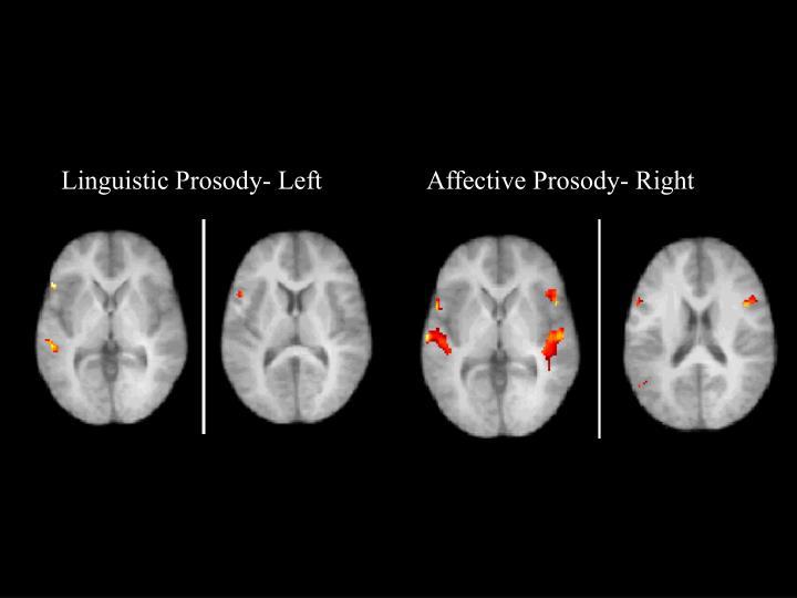 Linguistic Prosody- Left