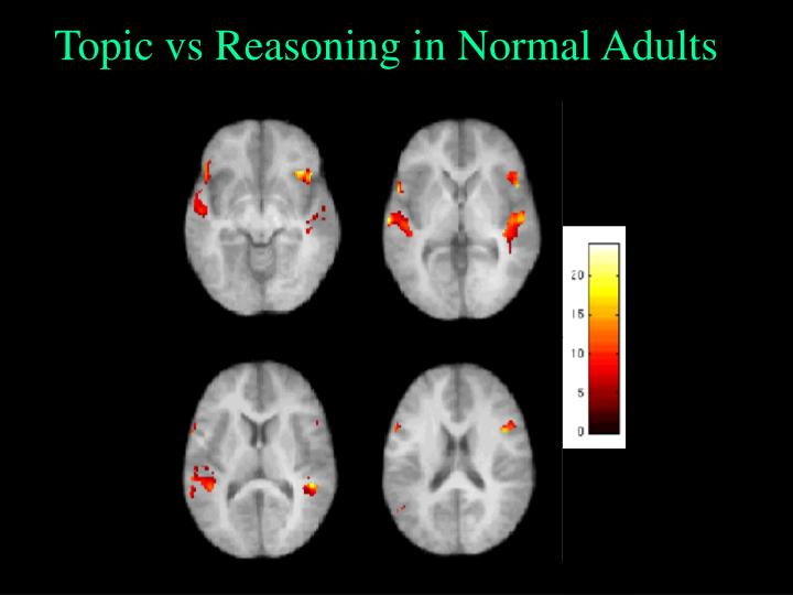 Topic vs Reasoning in Normal Adults