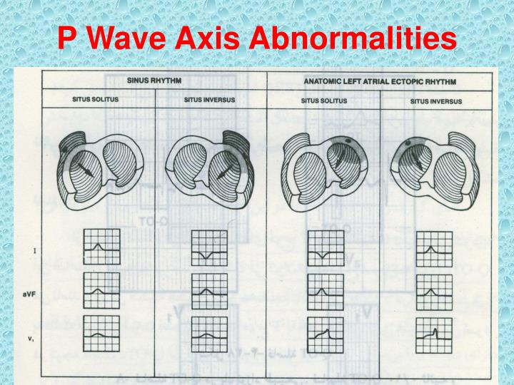 P Wave Axis Abnormalities