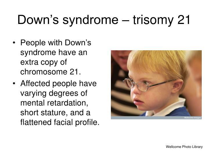 Down's syndrome – trisomy 21