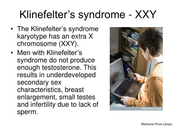 Klinefelter's syndrome - XXY