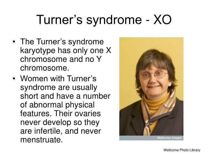 Turner's syndrome - XO
