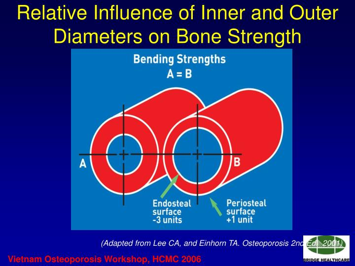 Relative Influence of Inner and Outer Diameters on Bone Strength