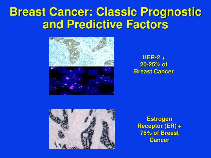 Breast cancer classic prognostic and predictive factors