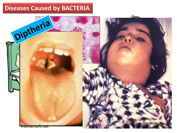 Diseases Caused by BACTERIA