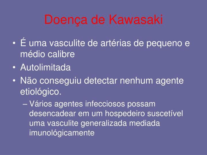 Doença de Kawasaki