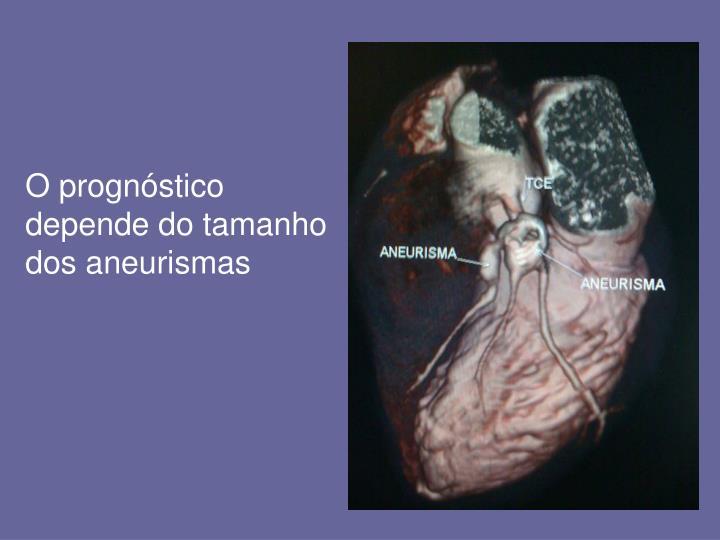 O prognóstico depende do tamanho dos aneurismas