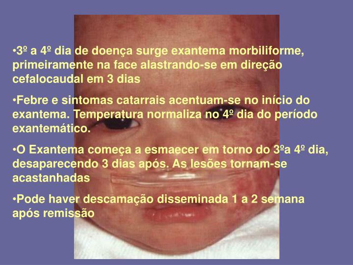 3º a 4º dia de doença surge exantema morbiliforme, primeiramente na face alastrando-se em direção cefalocaudal em 3 dias