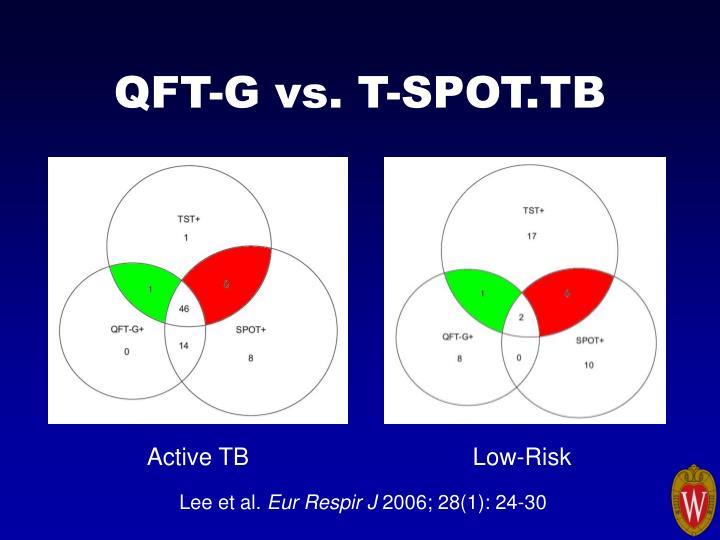 QFT-G vs. T-SPOT.TB