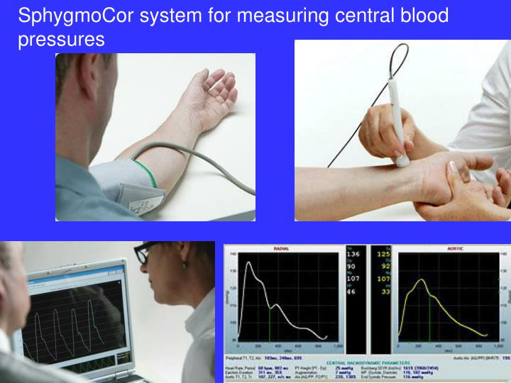 SphygmoCor system for measuring central blood pressures