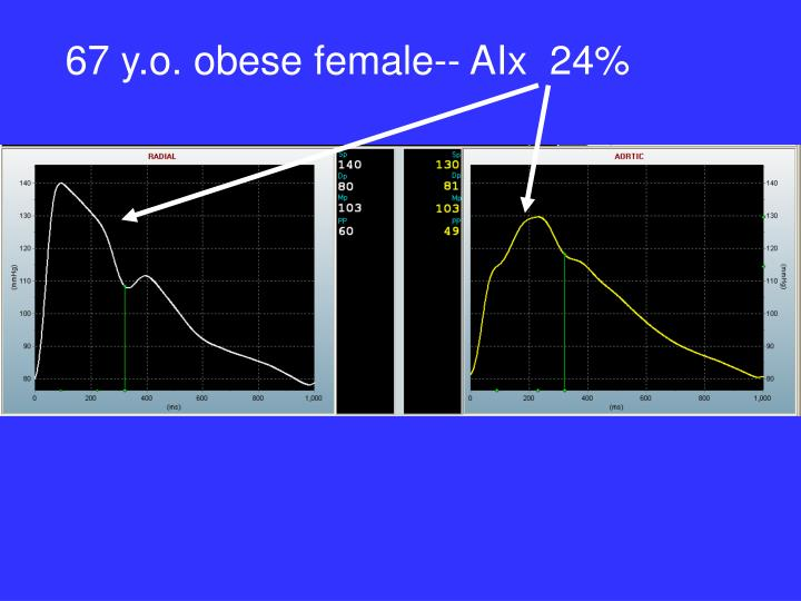 67 y.o. obese female-- AIx  24%