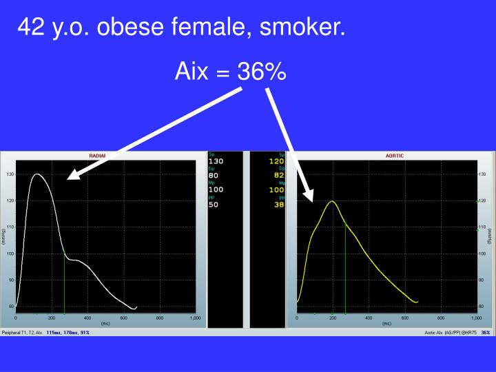42 y.o. obese female, smoker.